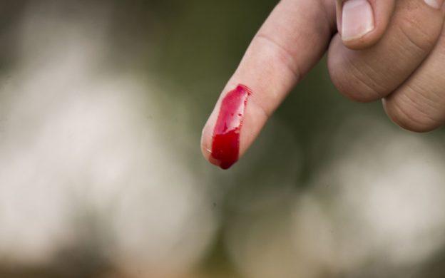Fingerverletzung (Bild: Pixabay)